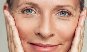 Ultherapy – a surgery-free facelift!